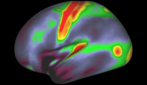 Des chercheurs dévoilent une carte du cerveau d'une précision inégalée