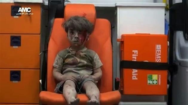 Un enfant de 4 ans blessé à la tête dans un bombardement à Alep diffusée par l'Aleppo Media Center le 17 août 2016- HO