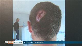 François, victime d'un grave accident alors qu'il roulait à vélo- La personne s'enfuit, un comportement qui interpelle (vidéo) 4