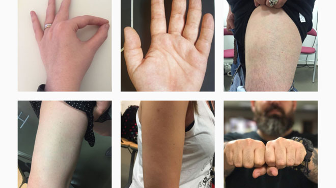 Pourquoi ces personnes postent-elles des photos de bras et de jambes sur Instagram ?