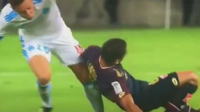 Dijon FCO : Wesley Lautoa absent de 3 à 6 mois